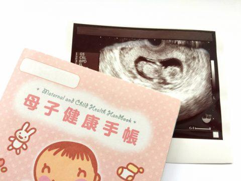 赤ちゃんの性別はエコーでどうやってわかるの?【突起物をいつも見る】