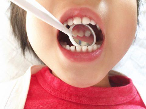 歯科検診されている子供