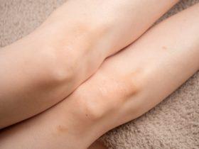 膝の黒ずみを保育士が簡単に消す方法!クリームのおすすめはラスター