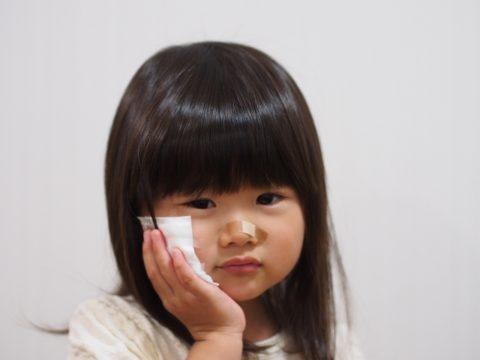 保育園では子供が原因で怪我をすることも【お詫びに保護者が出る?】