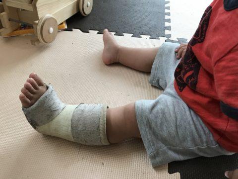 園児の怪我が原因で保育士を辞めたい!理由を5つ解説